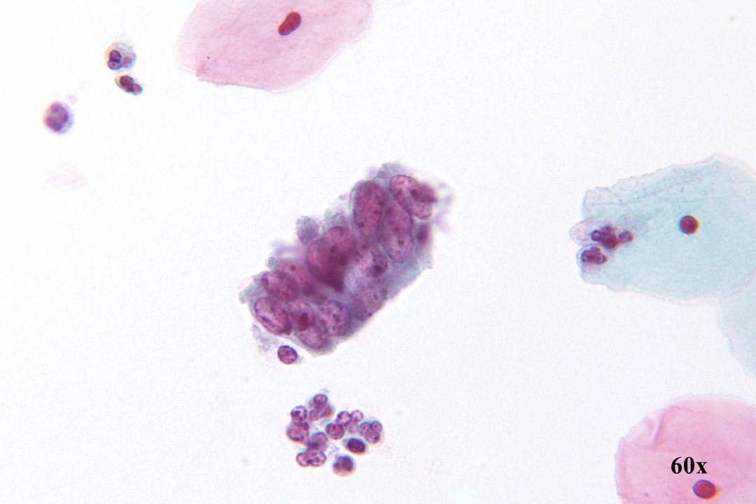 Adenocarcinoom in situ •Strook endocervicale cellen met vergrote en onregelmatige basaal gelegen kernen. Kernen nemen tweederde tot driekwart van de celhoogte in beslag.