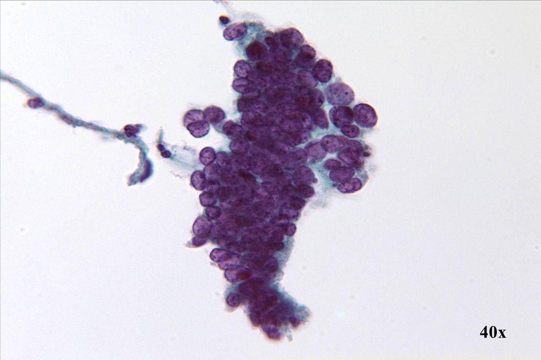 Adenocarcinoom in situ •Let op de diepte van de pseudostratificatie en de duidelijke cilindervormige rand onderaan deze groep.
