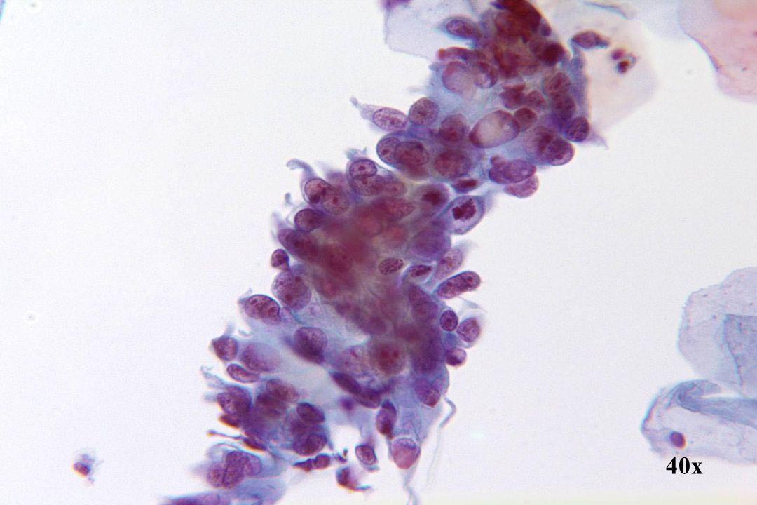Adenocarcinoom in situ •Let op de mitotische figuren