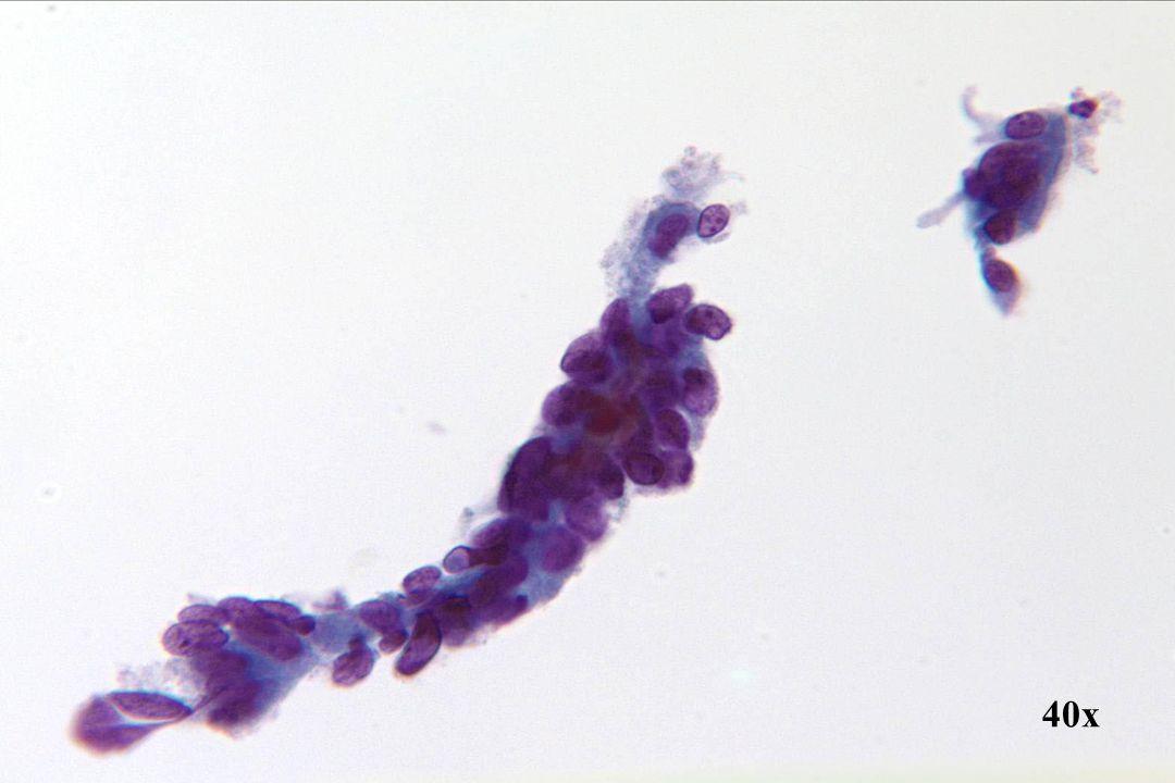 Tubaire metaplasie •Soms vertoont een groep cellen atypische kernen, maar zonder eindplaten of cilia, zoals bij deze grotere groep. De kleinere strook cellen rechtsboven heeft cilia en het is belangrijk dat u de morfologische overeenkomsten tussen deze twee groepen cellen ziet.