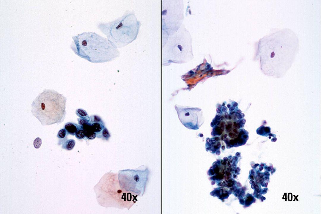 HSIL vs endometriale cellen •Groepen HSIL (zoals aan de linkerkant) hebben minder scherptediepte, maar duidelijker cytoplasmgrenzen.