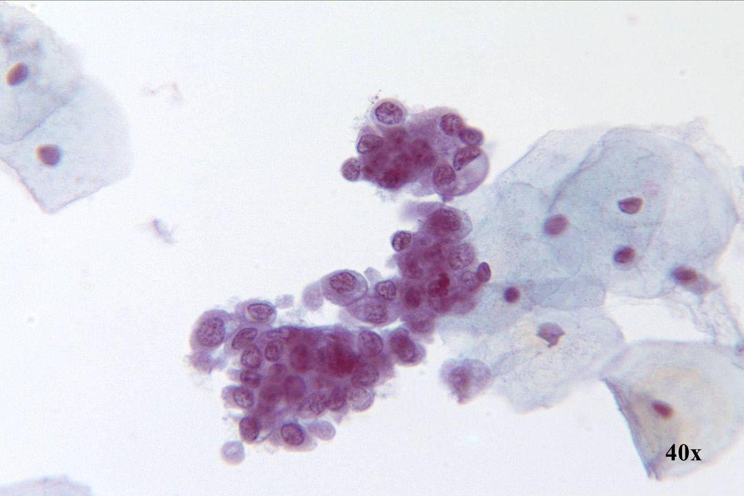 Endometriale cellen •Ronde en 3D-groep endometriale cellen in klassieke duiventros structuur. • Cytoplasma bobbels zijn kenmerkend voor verse endometriale cellen.