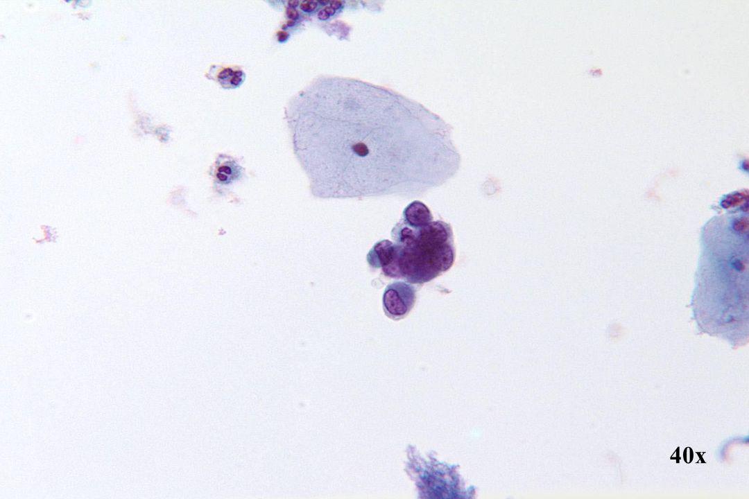 Endometriale cellen •Klein cluster cellen met excentrisch gelegen kernen. •Cytoplasma is relatief compact, hetgeen vaak voorkomt bij cellen van endometriale oorsprong en kan niet gebruikt worden om de cellen te onderscheiden van cellen van squameuze oorsprong.