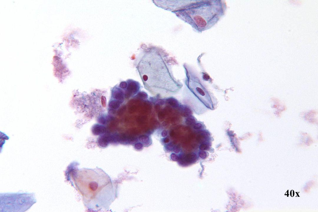 Endometriale cellen •Klassiek 3D-cluster met compacte centrale kern en kleuring. •De groepsranden kunnen delicaat geschulpt lijken. •Let op de cytoplasma bobbels.