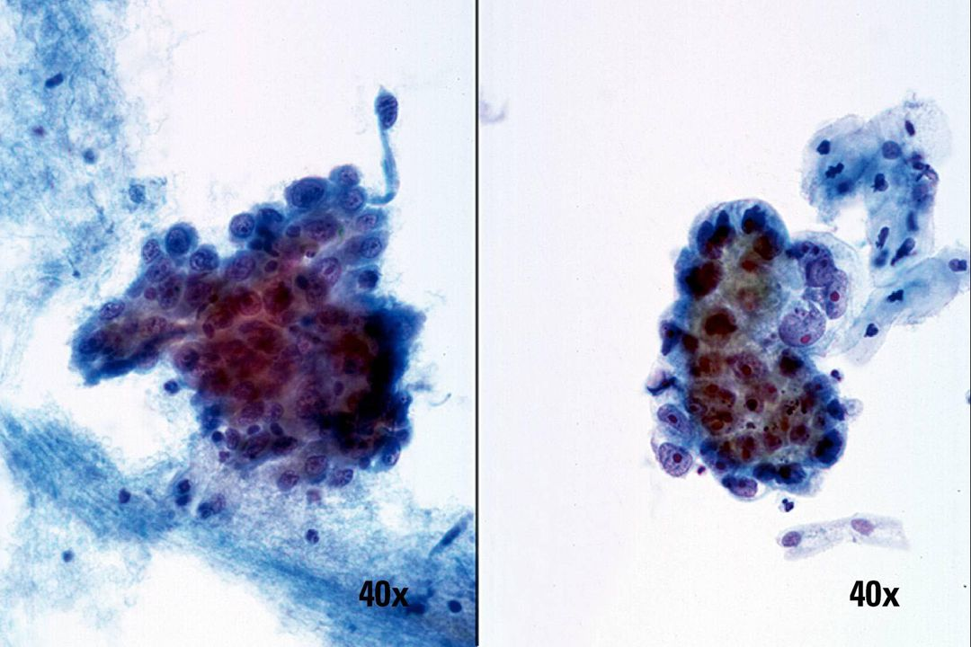 Niet-keratiniserend plaveiselcelcarcinoom vs adenocarcinoom •Niet-keratiniserend plaveiselcelcarcinoom (links) manifesteert zich voornamelijk met losse kwaadaardige cellen en lagen gedesorganiseerde kwaadaardige cellen.
