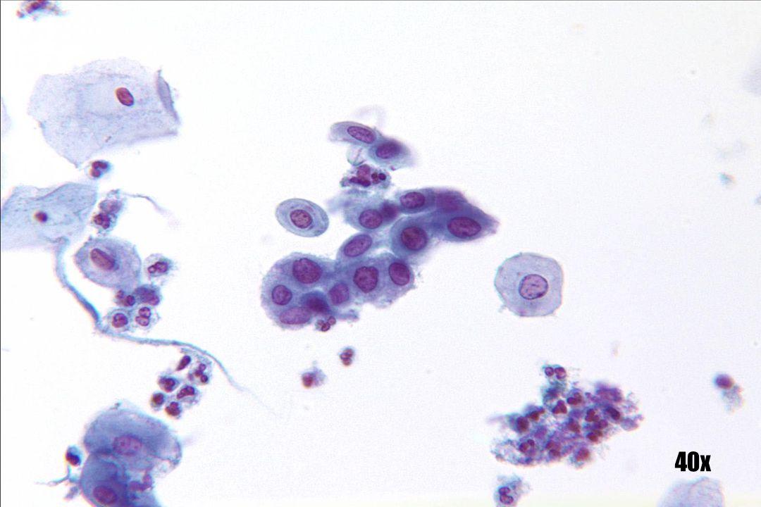 Onrijpe squameuze metaplasie •Cohesieve groep cellen met kinderkopjesstructuur. •Nucleair chromatine consistent van kern tot kern. •Minuscule chromocentra duidelijk aanwezig; deze zijn van een kenmerk van goedaardigheid.