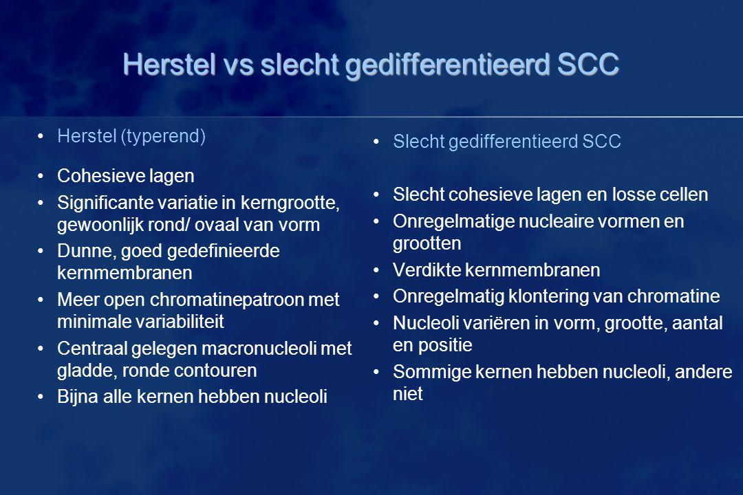 Herstel vs slecht gedifferentieerd SCC