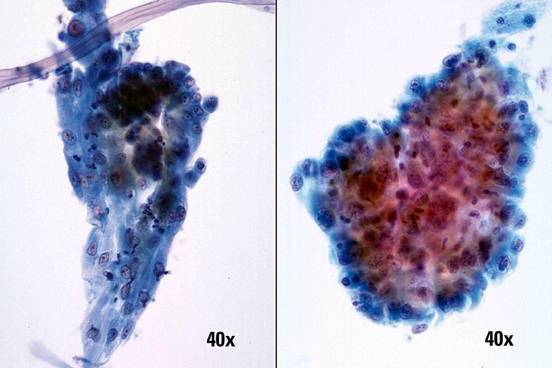 Herstel vs plaveiselcelcarcinoom •Bij herstel (links) blijft de configuratie in lagen intact en ziet het cytoplasma eruit als een weefselcultuur.
