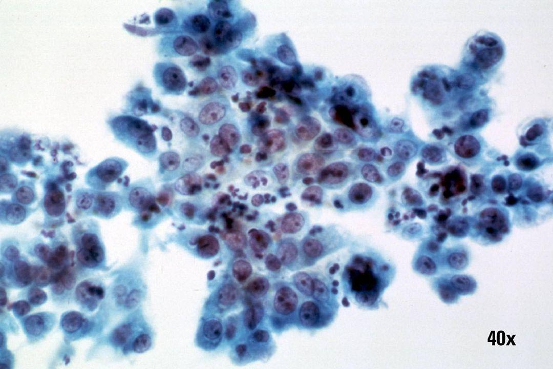 Herstel •Uniform platte laag cellen met ronde nucleoli, ingesnoerde WBC s en intacte nucleaire polariteit.