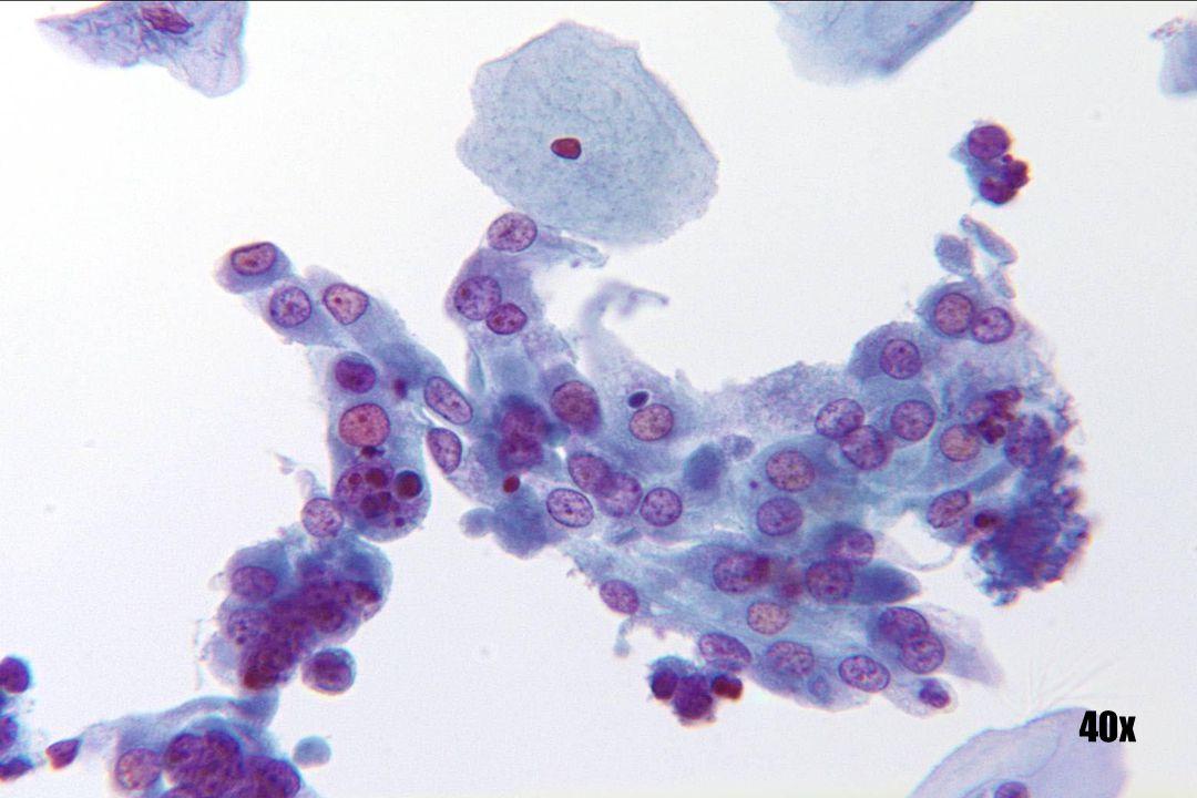 Herstel •Platte laag cellen met overvloedig cytoplasma