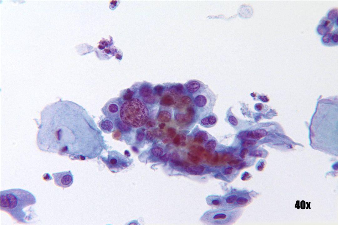 Niet-keratiserende SCC •Pleiomorfismen met significante variatie in kerngrootte en chromatine. •De laag is meer 3D en minder cohesief.