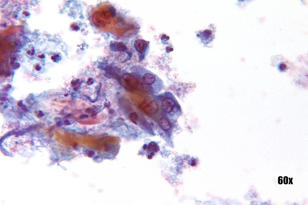 Plaveiselcelcarcinoom •Euchromatische kernen zien er open en leeg uit en hebben verdikte kernmembranen. •Keratine in achtergrond samen met bloed en necrotisch materiaal.