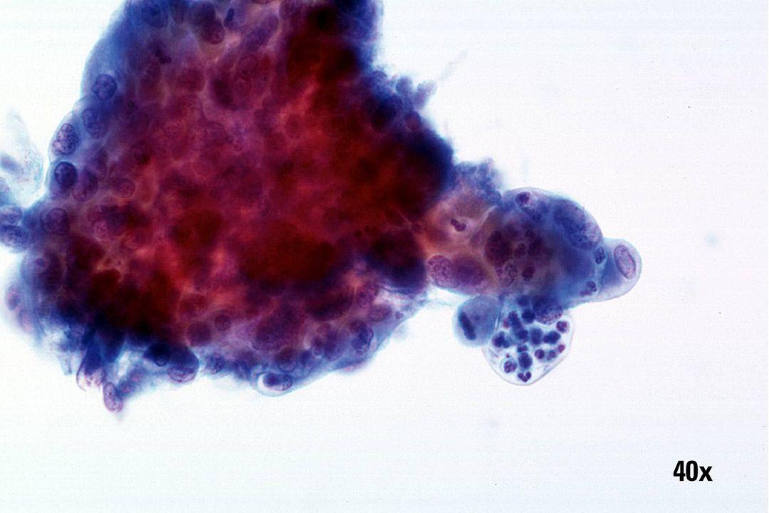 Endocervicaal adenocarcinoom •Cluster van glandulaire cellen met uitschulpingen, prominente meerdere insnoeringen en nucleoli.