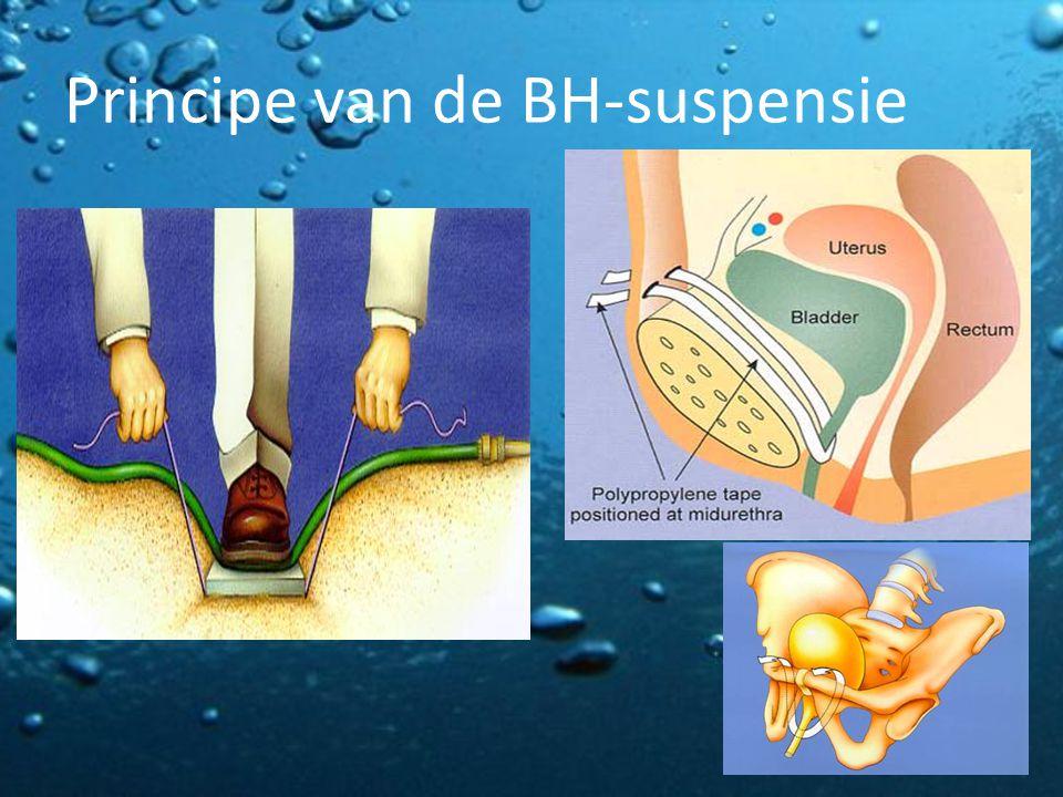 Principe van de BH-suspensie