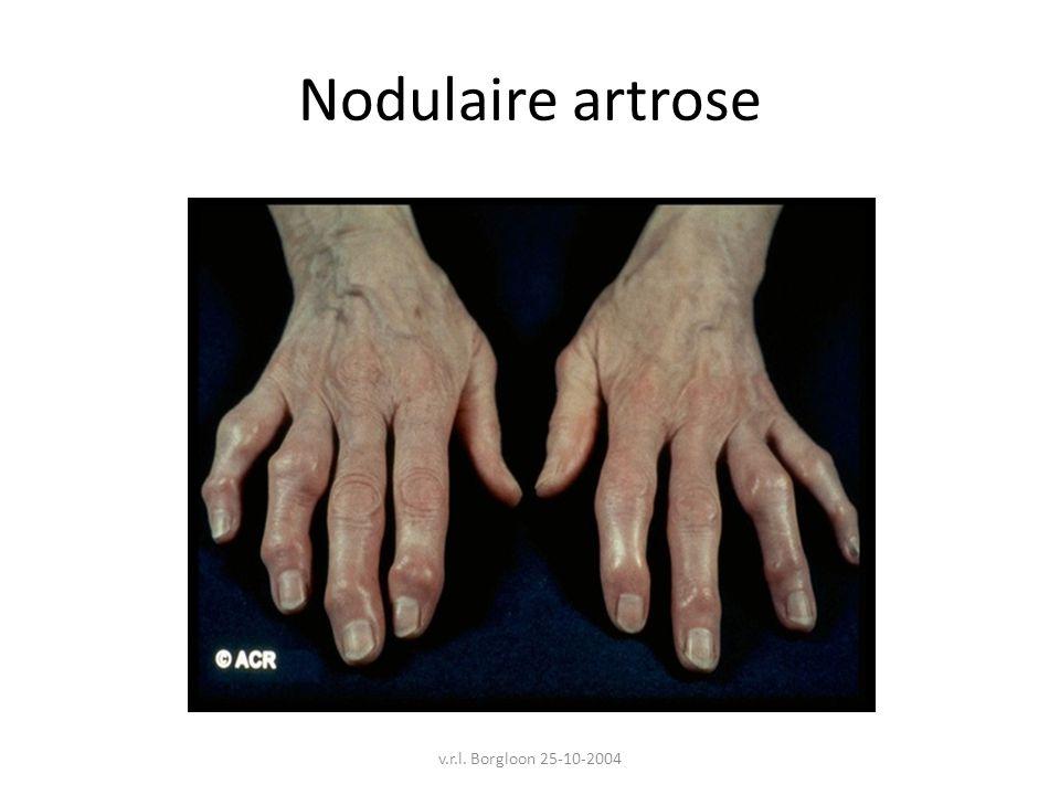 Nodulaire artrose v.r.l. Borgloon 25-10-2004