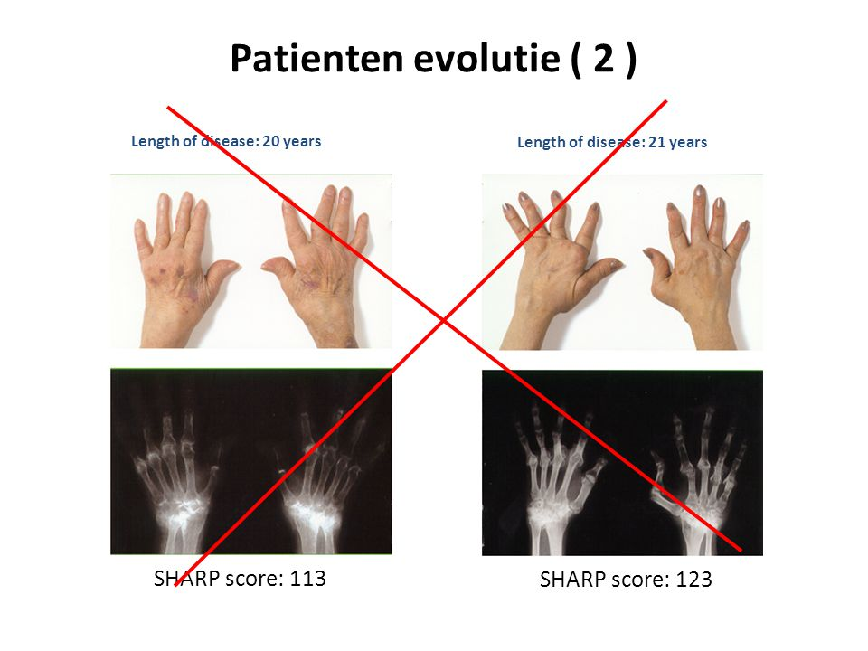 Patienten evolutie ( 2 ) SHARP score: 113 SHARP score: 123