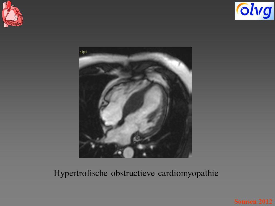 Hypertrofische obstructieve cardiomyopathie