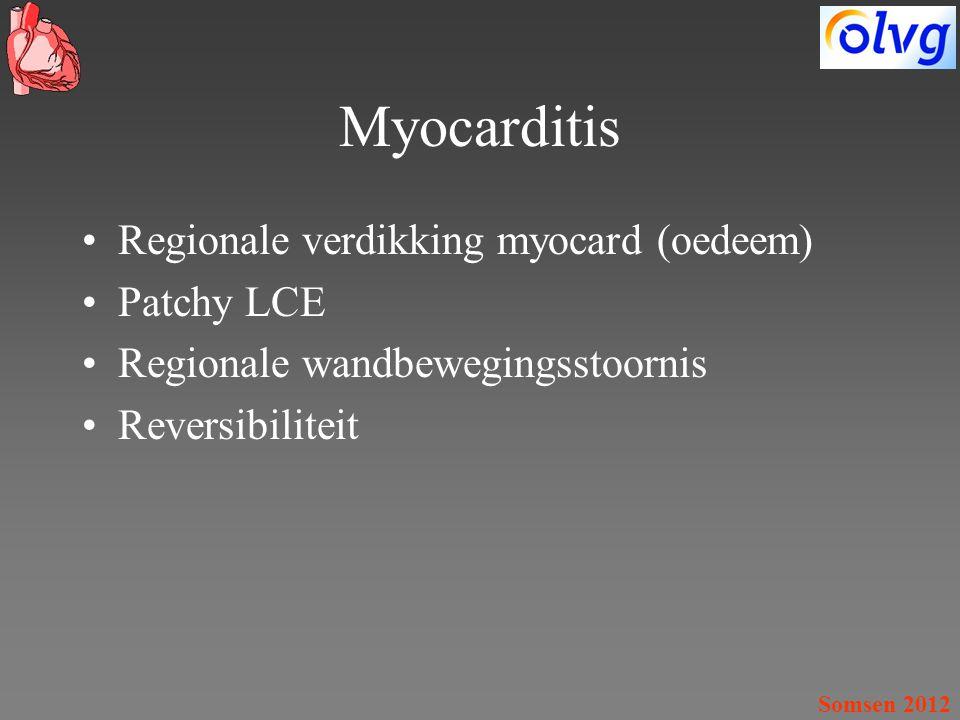 Myocarditis Regionale verdikking myocard (oedeem) Patchy LCE