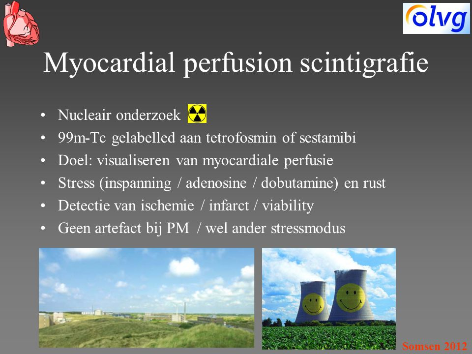 Myocardial perfusion scintigrafie