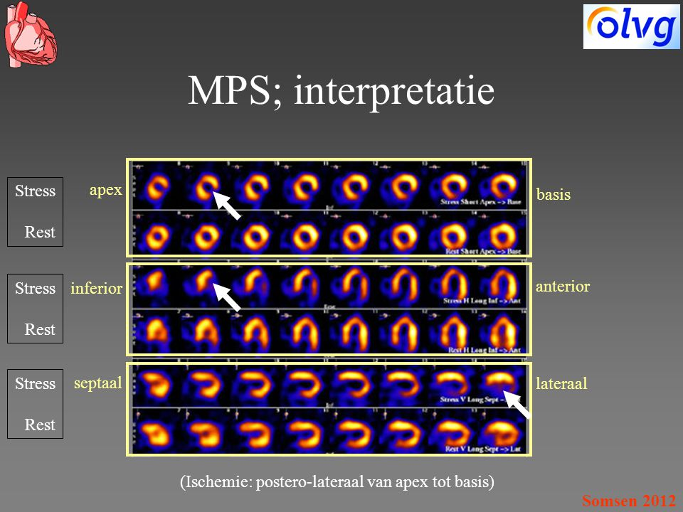 MPS; interpretatie Stress Rest apex basis Stress Rest inferior