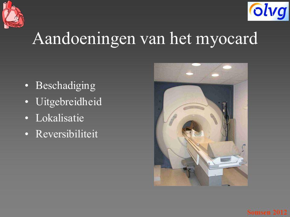 Aandoeningen van het myocard