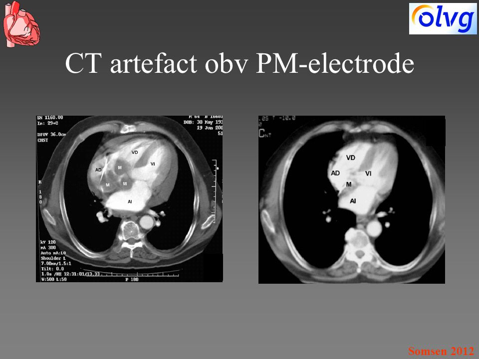 CT artefact obv PM-electrode