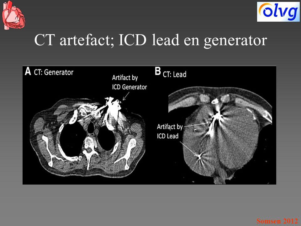 CT artefact; ICD lead en generator