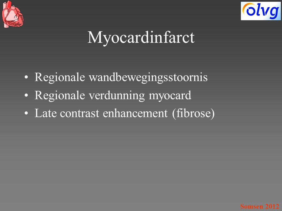 Myocardinfarct Regionale wandbewegingsstoornis