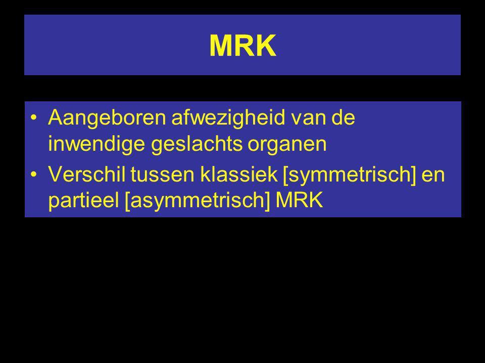 MRK Aangeboren afwezigheid van de inwendige geslachts organen