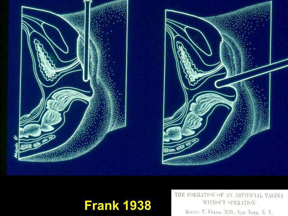 Frank 1938