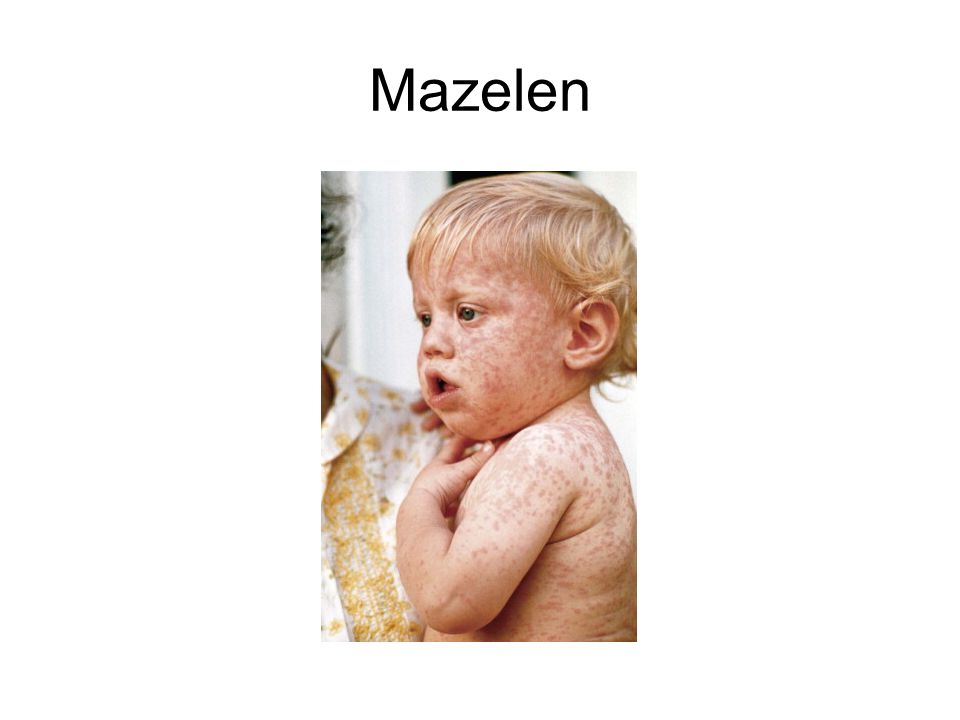 Mazelen RNA virus. Aerosolen overdraagbaarheid.