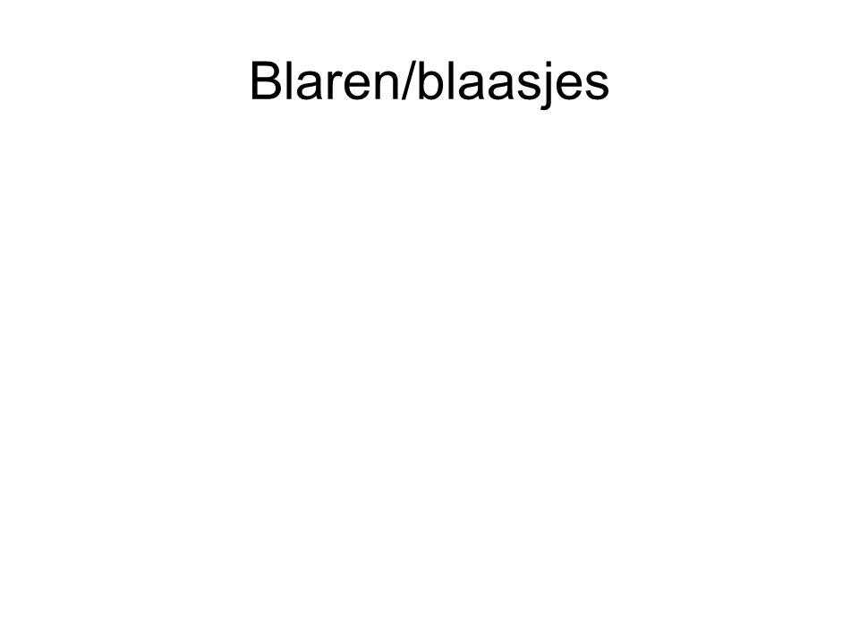 Blaren/blaasjes