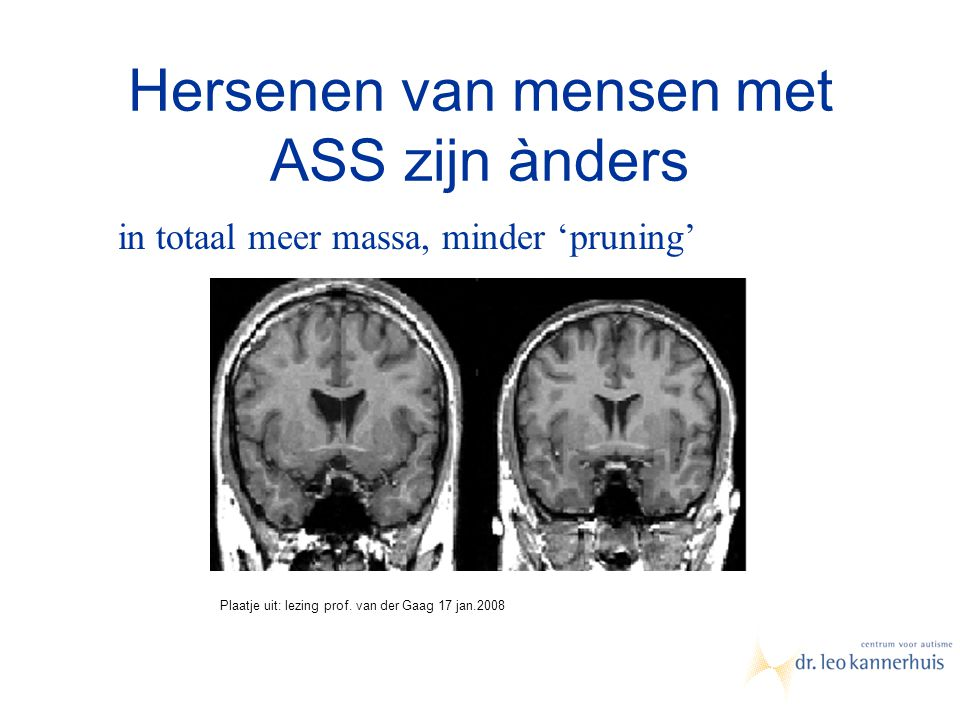 Hersenen van mensen met ASS zijn ànders