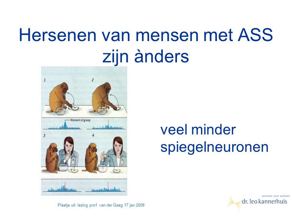 Hersenen van ASS zijn ànders Hersenen van mensen met ASS zijn ànders