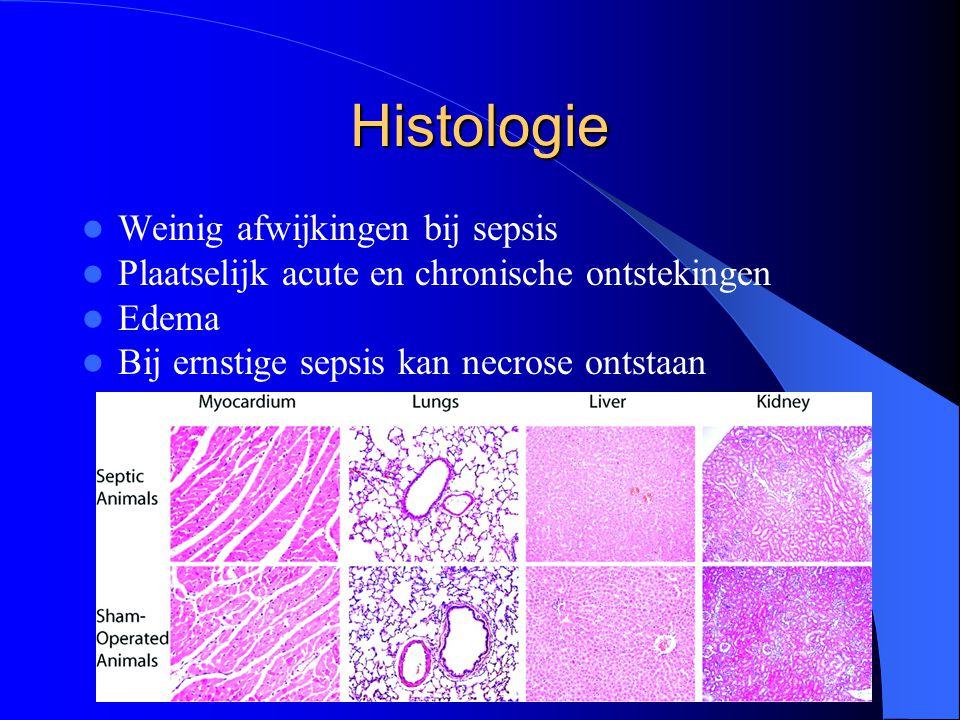 Histologie Weinig afwijkingen bij sepsis