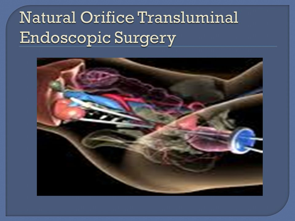 Natural Orifice Transluminal Endoscopic Surgery