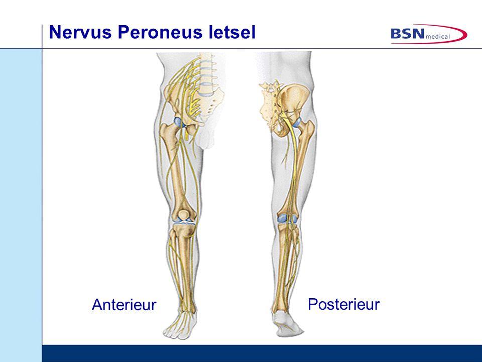Nervus Peroneus letsel