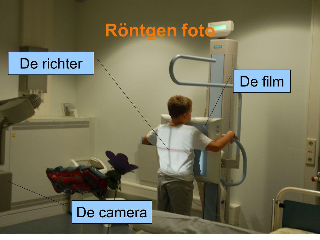 Röntgen foto De richter De film De camera