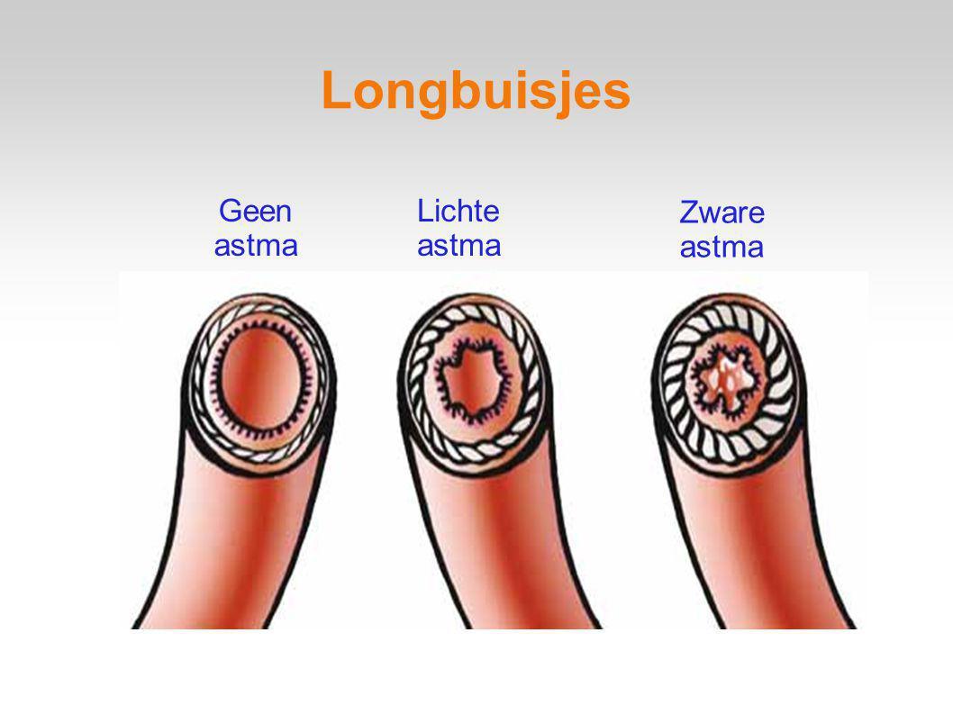 Longbuisjes Geen astma Lichte astma Zware astma