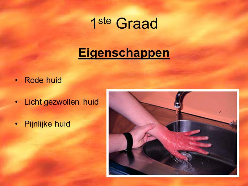 1ste Graad Eigenschappen Rode huid Licht gezwollen huid Pijnlijke huid