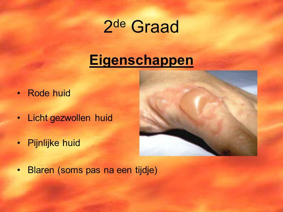2de Graad Eigenschappen Rode huid Licht gezwollen huid Pijnlijke huid
