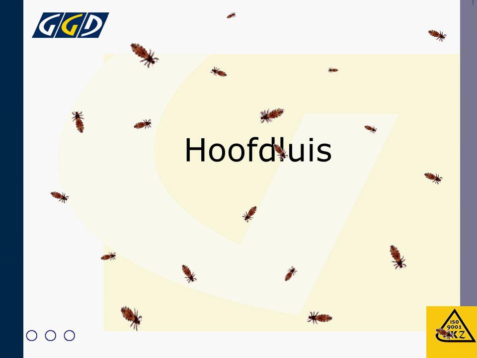 Hoofdluis