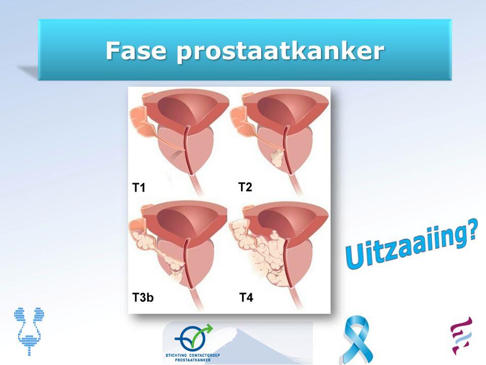 Fase prostaatkanker Uitzaaiing