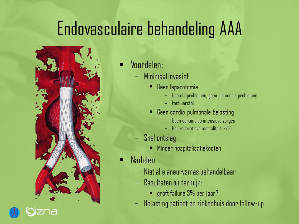 Endovasculaire behandeling AAA