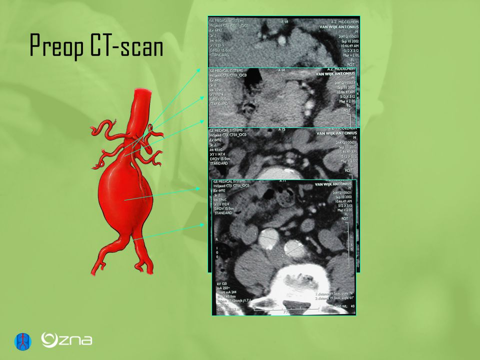 Preop CT-scan