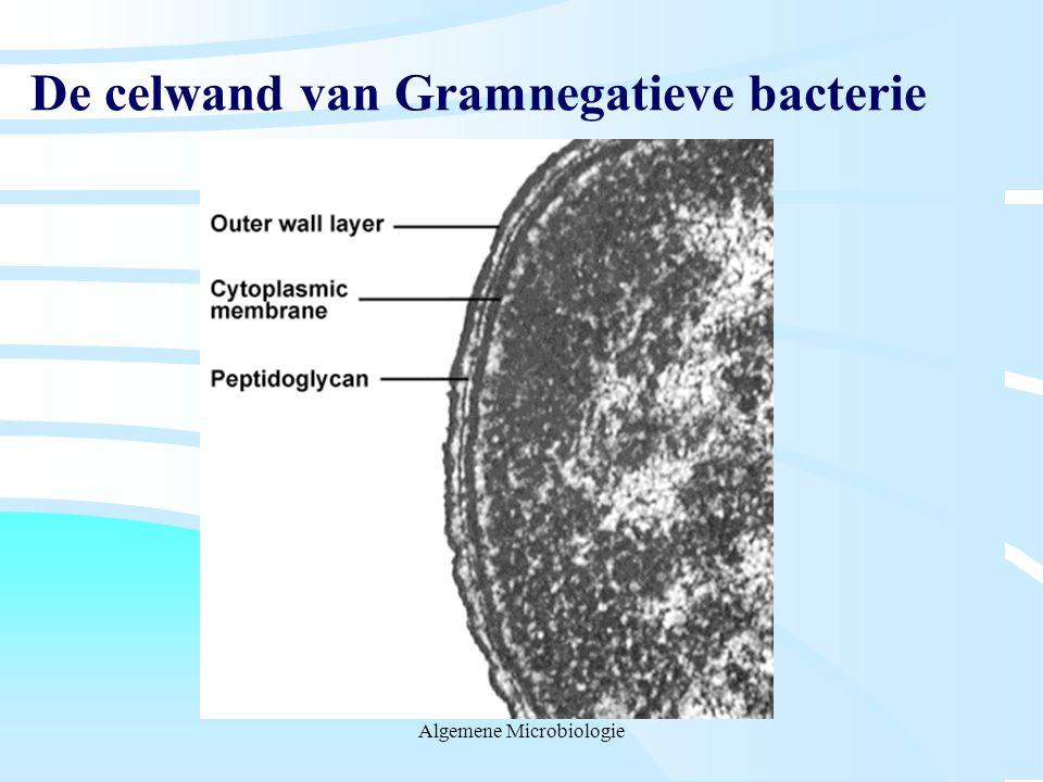De celwand van Gramnegatieve bacterie