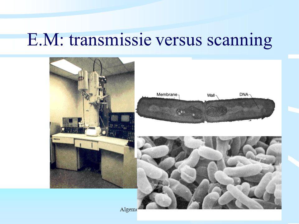 E.M: transmissie versus scanning