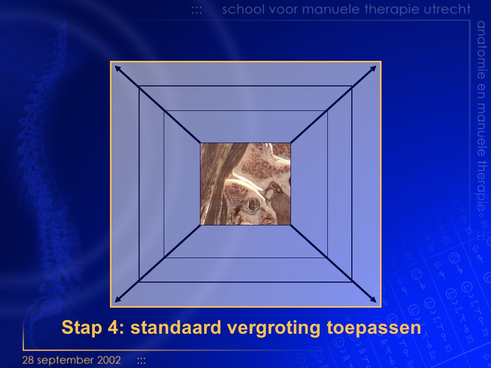Stap 4: standaard vergroting toepassen