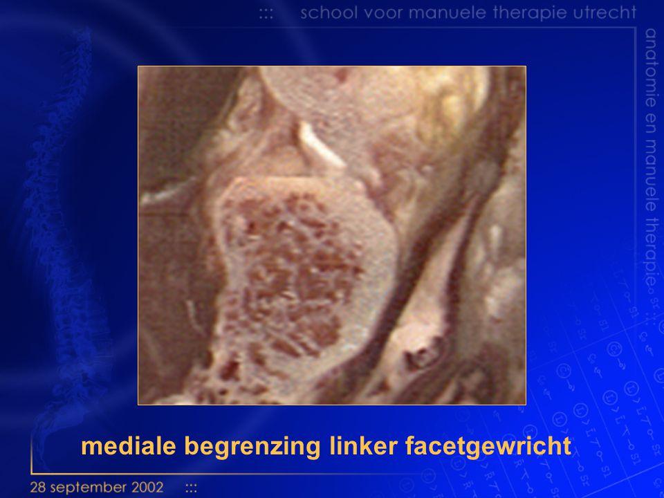 mediale begrenzing linker facetgewricht