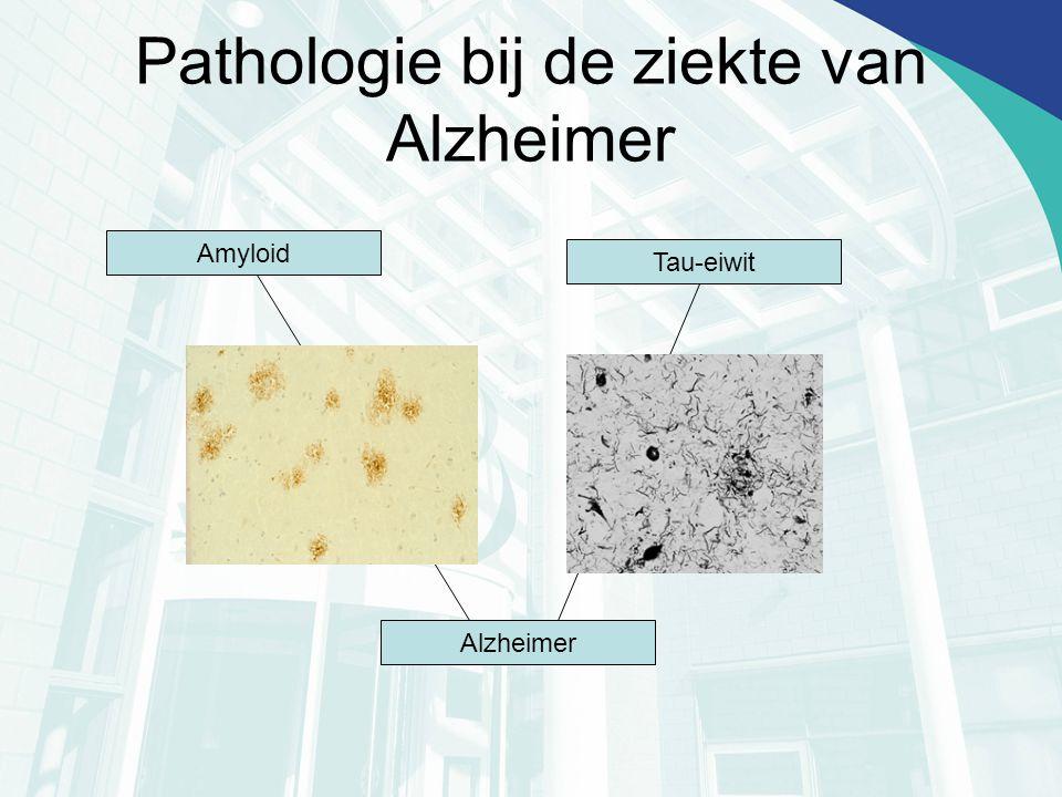Pathologie bij de ziekte van Alzheimer